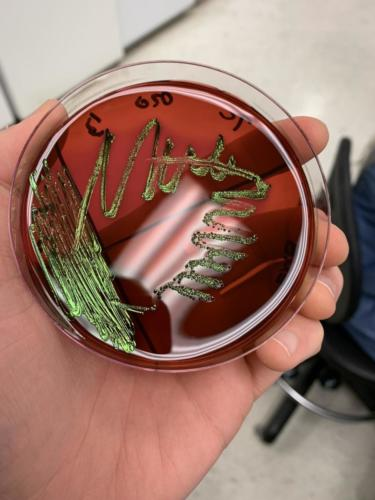 Escherichia coli su EMB agar