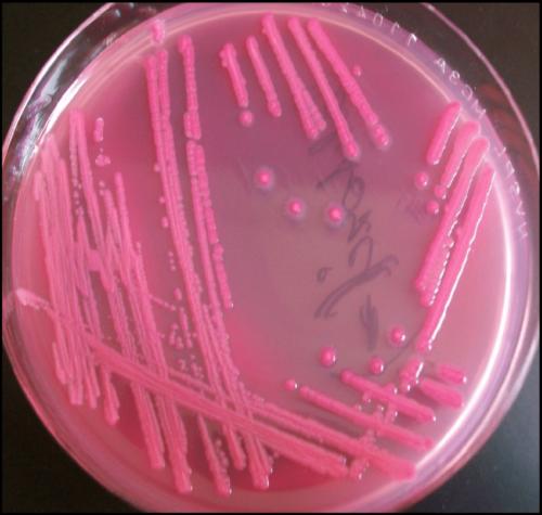 Escherichia coli su Macconkey agar