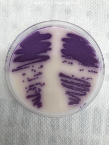 Salmonella spp. su Brilliance agar