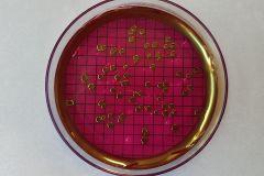Escherichia coli su m-Endo agar les