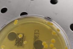 Staphylococcus aureus 2